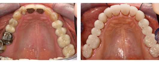 Composite Equal to or Better Than Amalgam, New Study Shows - Dr. Judson Wall