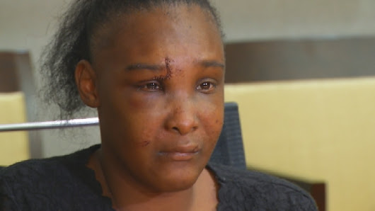 Bruised & Broken: Survivor recounts that fateful bus ride that nearly killed her