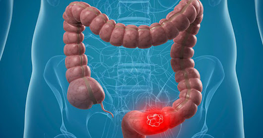 Colon Cancer Causes and Risk Factors