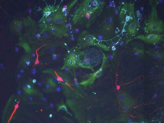 Study shows cerebrospinal fluid signals control the behaviour of stem cells in the brain.