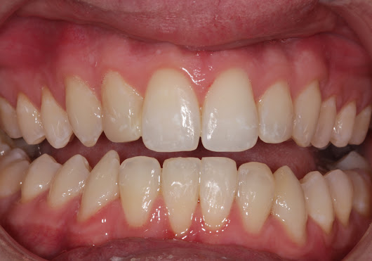 Another satisfied teeth straightening client