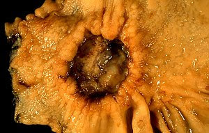 This cancer presented in a 40-year-old woman c...