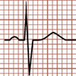 QRS Complex Morphology in the Electrocardiogram