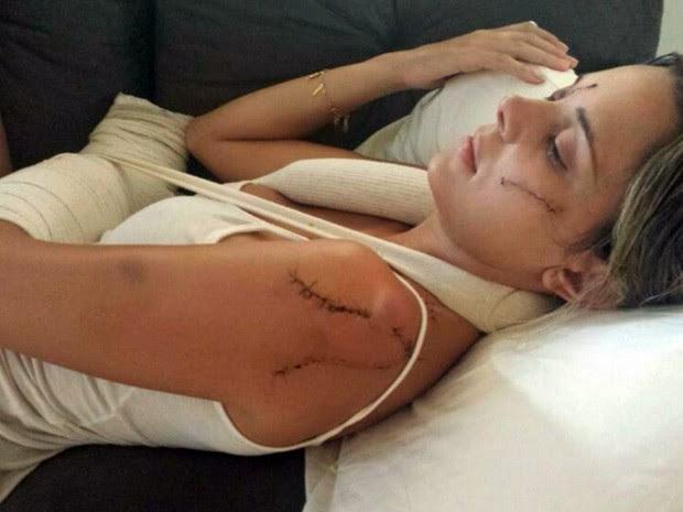 jovem de 22 anos perdeu parte da visão após ser esfaqueada no rosto em Alterosa (Foto: Reprodução EPTV)