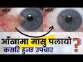 Pterygium Eye Disease in Nepali