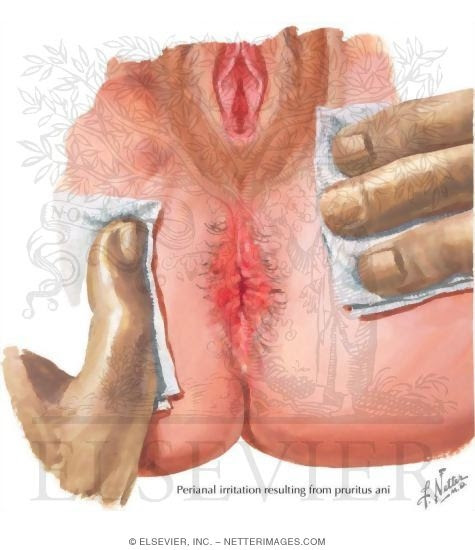Homeopathic remedy for anus fissure-3159