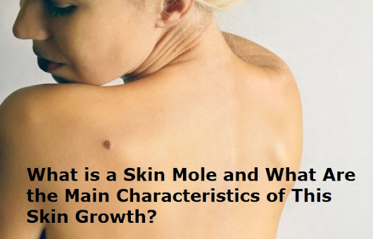 What is Skin Mole and Main Characteristics of This Growth - E Friends