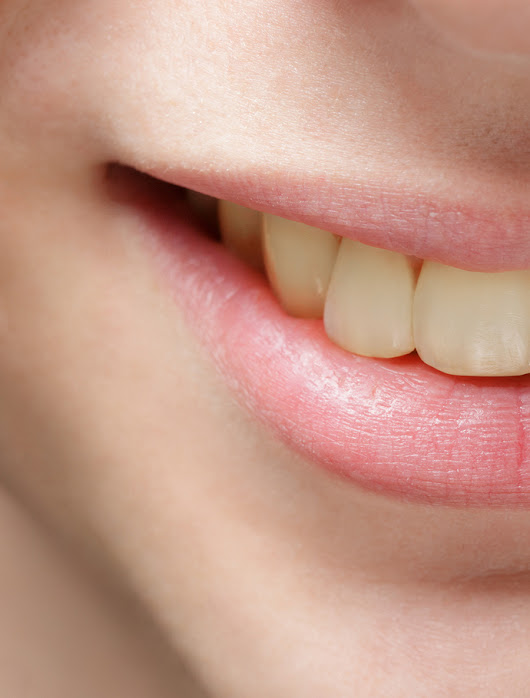 Are your teeth going from white to not so bright?