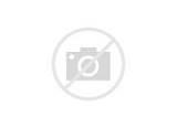 Images of Acute Left Upper Quadrant Abdominal Pain