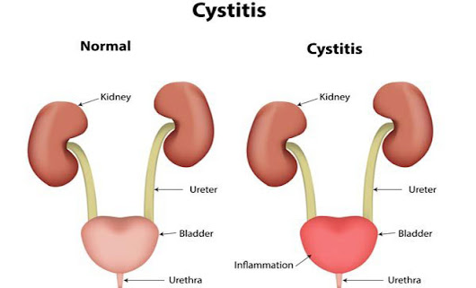 Home remedies for interstitial cystitis (painful bladder syndrome)
