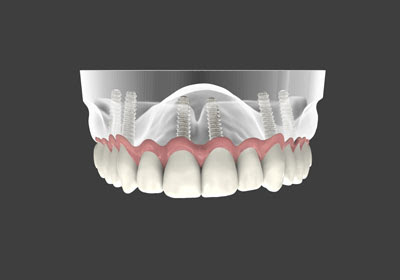 What Are Implant Supported Dentures?
