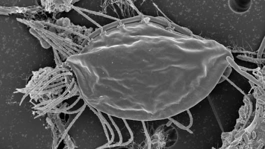 Organisms found on hike in the woods are like no other life on Earth | CBC News