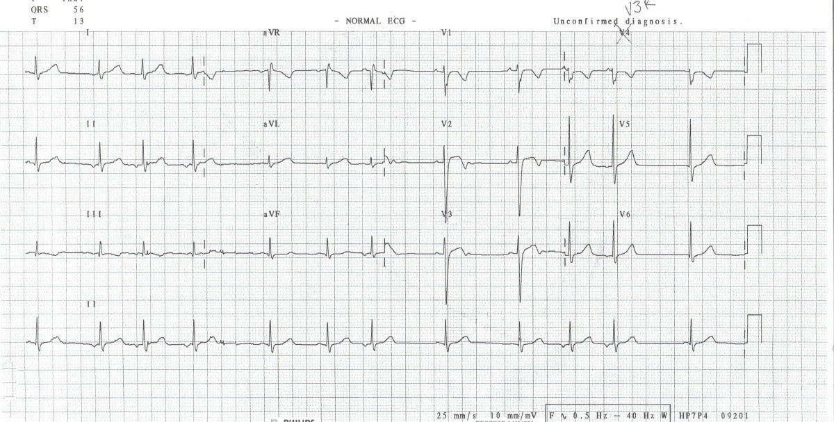 aquila u0026 39 s blog  heart block ecg