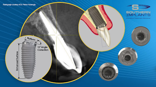 Co-Axis Implants for Subcrestal Angle Correction | Southern Implants
