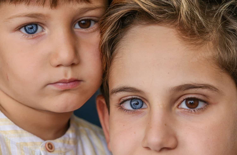 Menino e irmão nascem com um olho de cada cor e fotos impressionam