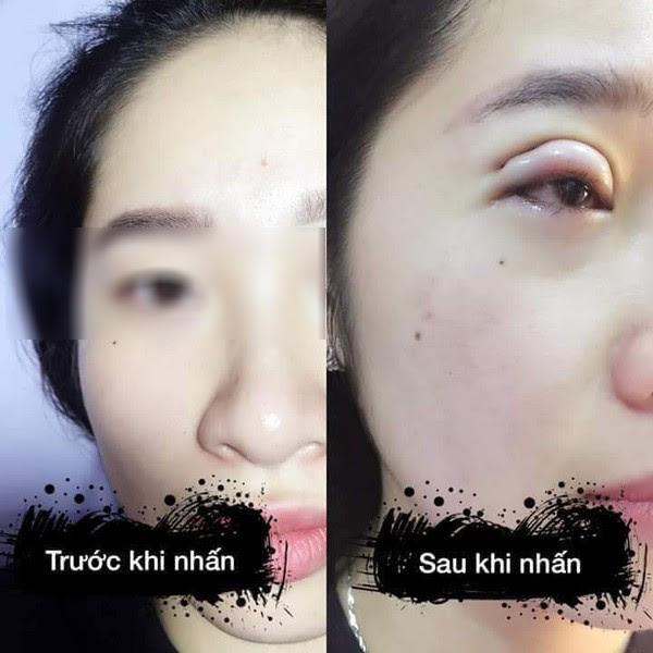 Là tiểu phẫu nhưng cắt mí hay bóc mỡ bọng mắt cũng có thể gây ra những hậu quả nhìn kinh khủng như thế này - Ảnh 14.