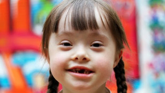 Down Syndrome: The Causes and Symptoms of This Genetic Disorder - NDTV Food