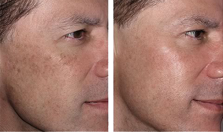 Advanced wrinkle treatment without painless. Zero wrinkle laser treatment in Westbury, Long Island, New York.