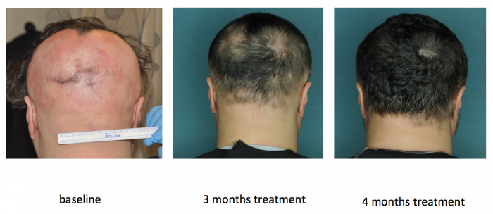 alopecia areata drug
