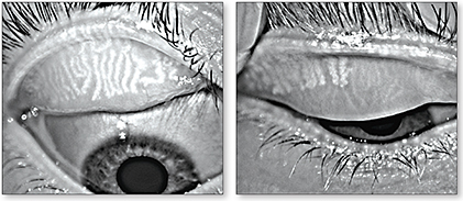 black and white images of 2 human eyes with the eyelid pulled back showing Meibomian Glands ducts white and thick as though the ducts are jammed with goo the appearance extends throughout the length and width of the eyelid in one person the second eyelid shows some healthy ducts the dysfunction is greatly reduced but still evident