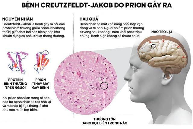 Những cái chết thầm lặng vì nhiễm prion: Phân tử thây ma âm thầm biến não bộ thành bọt biển - Ảnh 6.