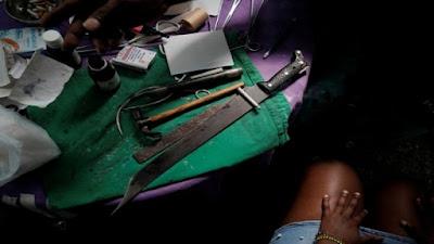Tabib di Kuba Operasi Pasien Pakai Golok hingga Palu