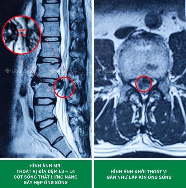 Hình ảnh chụp cộng hưởng từ (MRI) thoát vị đĩa đệm cột sống thắt lưng