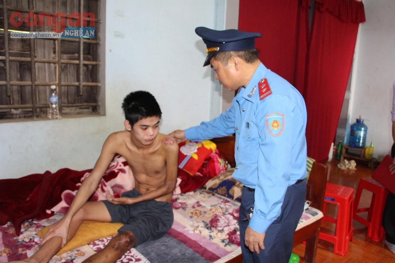 Ban An toàn giao thông tỉnh thăm hỏi, động viên anh  Nguyễn Văn Hiệp ở xóm Phú Tân, xã Tây Hiếu, TX Thái Hòa bị tai nạn giao thông nghiêm trọng