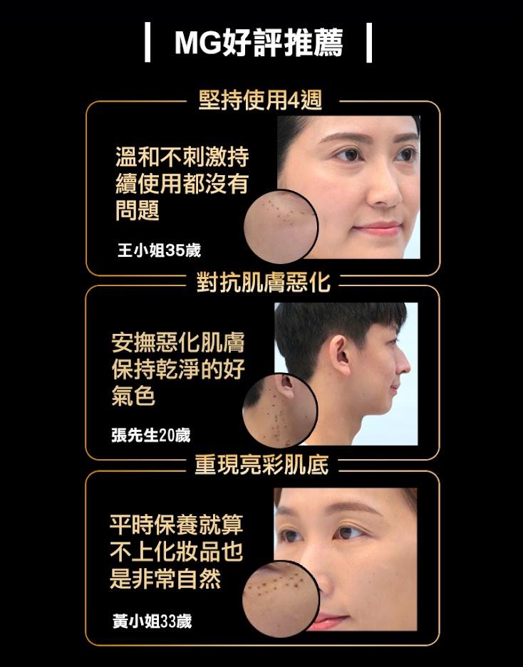 MG角質更新精華,好評推薦,溫和不刺激持續使用都沒問題,安撫惡化肌膚保持乾淨的好氣色,平時保養就算不上化妝品也非常自然