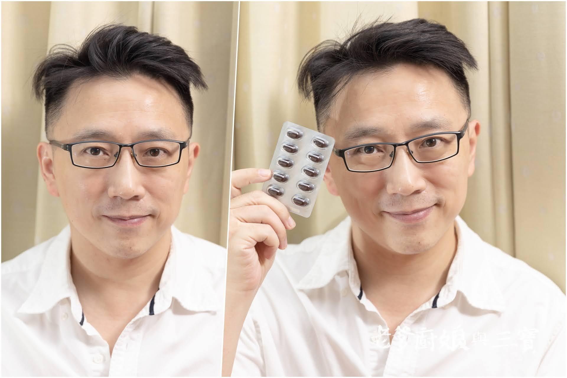 3C助你維持正常生活,但視力也要保養蛤~RayWin睿淵生醫優視力頂級葉黃素,本日開箱推薦!