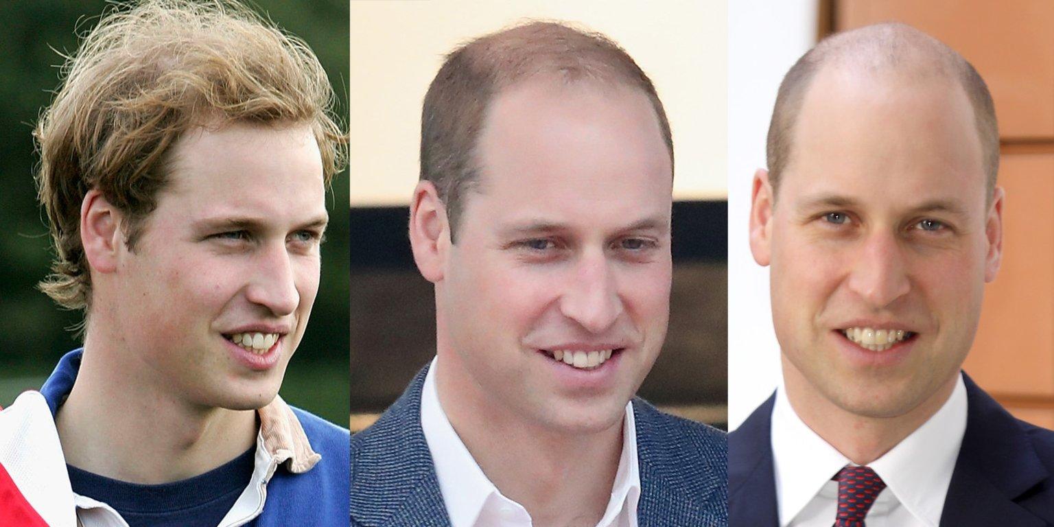 Prince William Baldness
