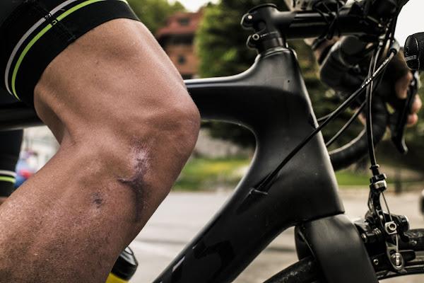 Le cicatrici sono i tatuaggi dei ciclisti di battphoto