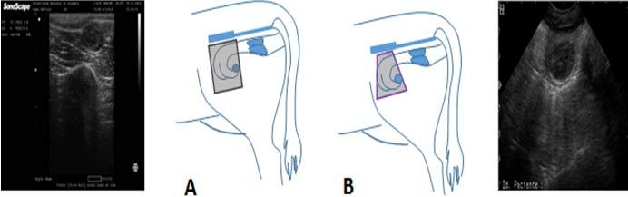 Representación del haz de ultrasonidos.