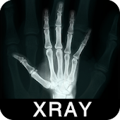 X-Ray Scanner PrankApp