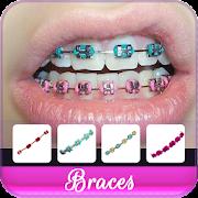 Braces Colors Beauty