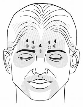 Botox Training Glabellar Injection Pattern