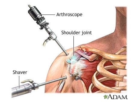 C:\Users\1\Desktop\shoulder-arthroscopy-illustration-adam1.jpg