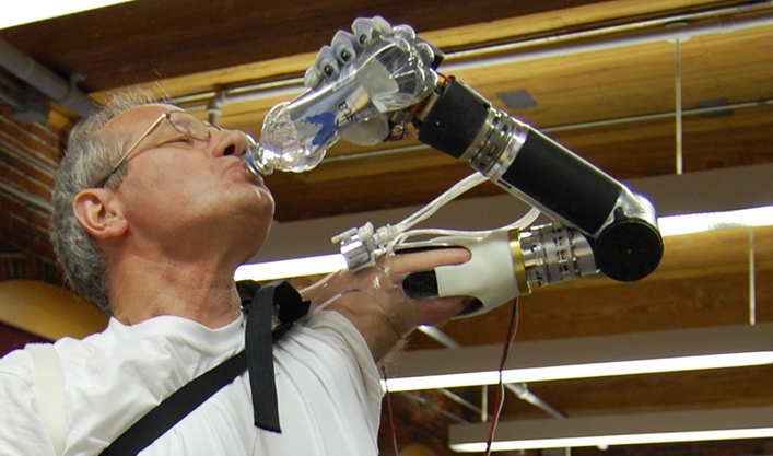 Photo: Bionic hand. It can sense nerve signals like a normal hand