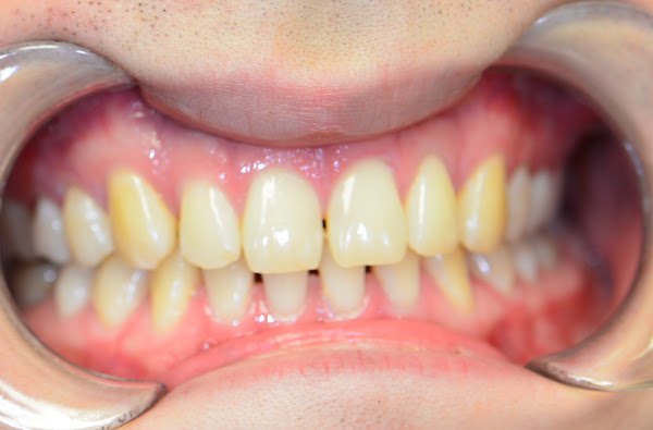 NYC Invisalign Braces For Spacing Before