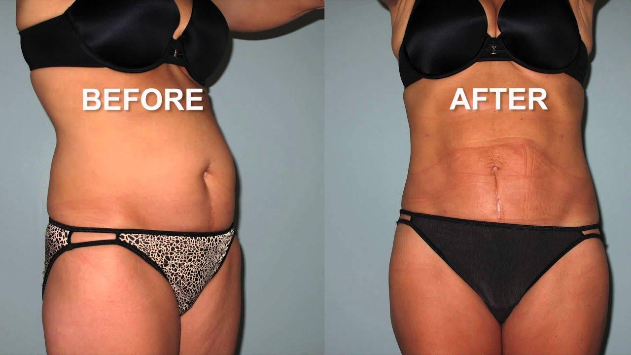 See the Before and After Results for the Liposuction Procedure! - YouTube