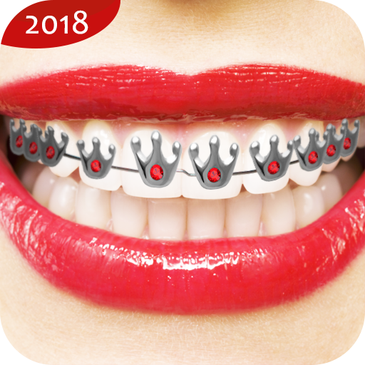 app insights real braces teeth apptopia