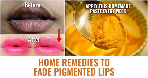 12 Home Remedies to Clear Pigmentation on Lips