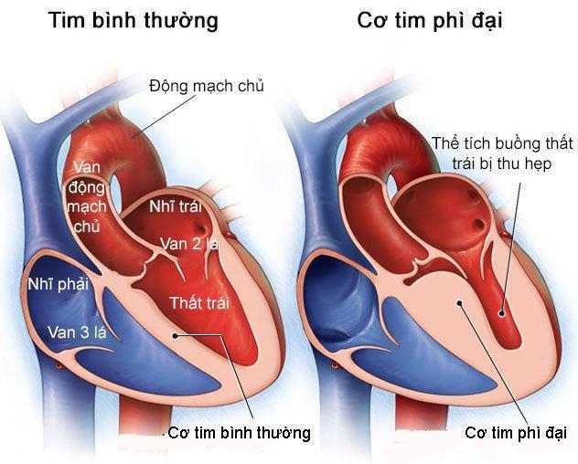 Kết quả hình ảnh cho bệnh cơ tim phì đại