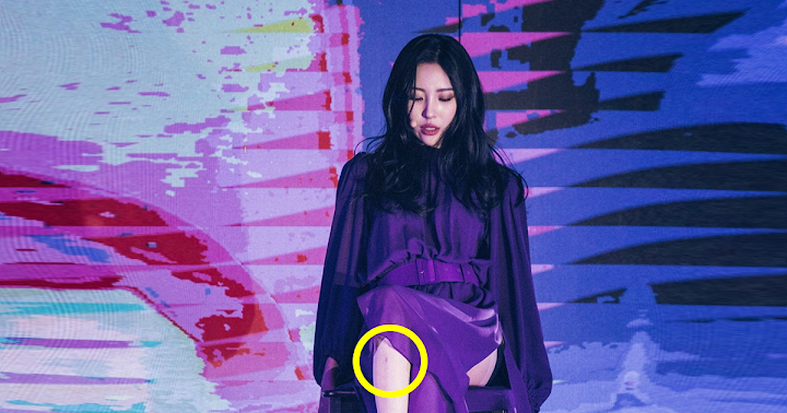 Photos of Sunmi's Severe Bruises From Filming