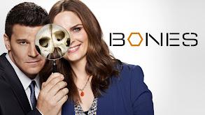 Bones thumbnail