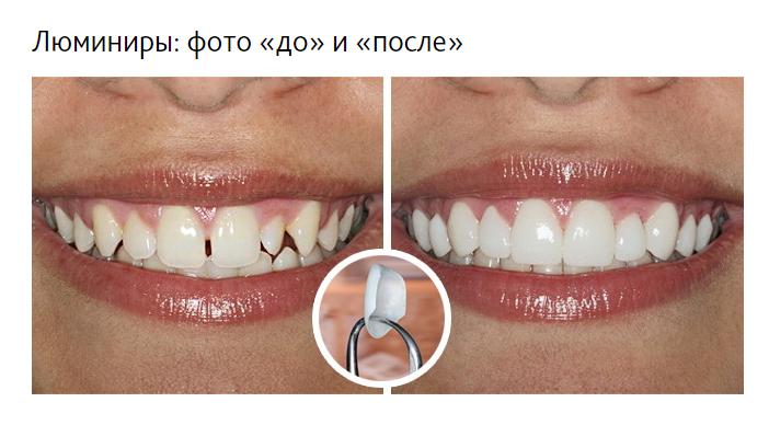 Люминиры отлично корректируют кривые зубы