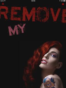Remove My Tat - náhled