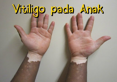 Apa Penyebab Vitiligo Pada Anak Anak
