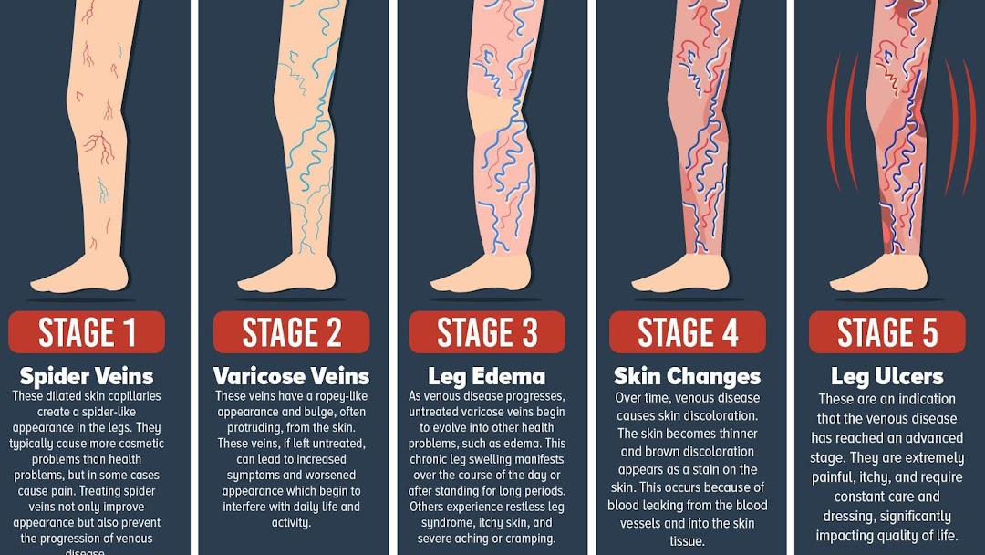 Varicose vein treatment Bloomingdale - Skin Care Clinic in