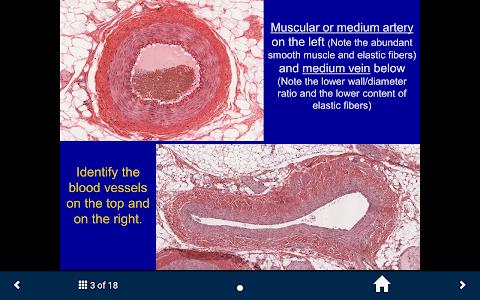 Cardiovascular & Lymph. System screenshot 2